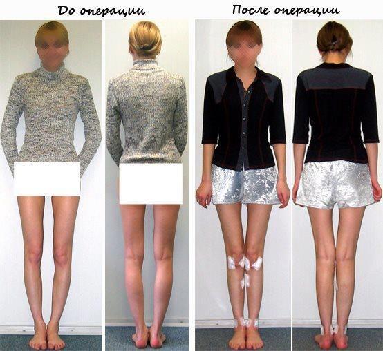 как скрыть кривизну ног одеждой фото сами создают нужный