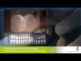 KaVo DIAGNOcam Strahlungsfreie Kariesdiagnostik
