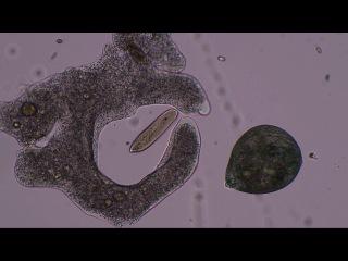 Как амеба-протей охотится на инфузорий туфелек