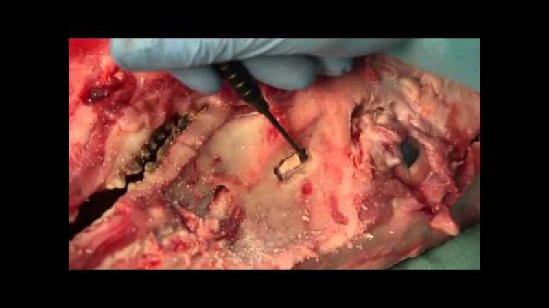 MEISINGER Externer Sinuslift