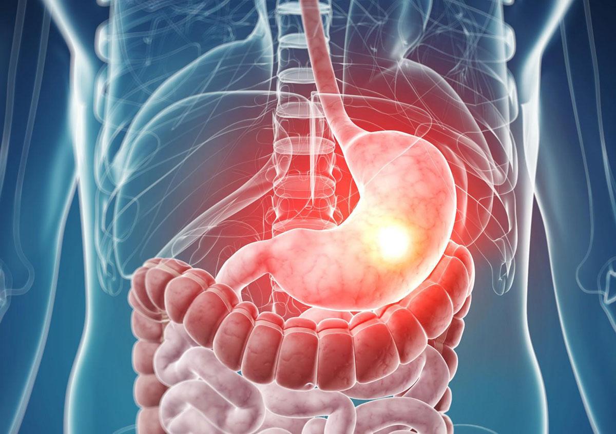 Что такое слизистая оболочка кишечника?
