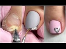 Most Amazing Ugly Toenails Transformations 💗 Gel Toenail Pedicure Toenails Cleaning