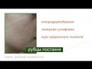Уход за проблемной кожей | Ответы на ваши вопросы 📧 [HD 720p]