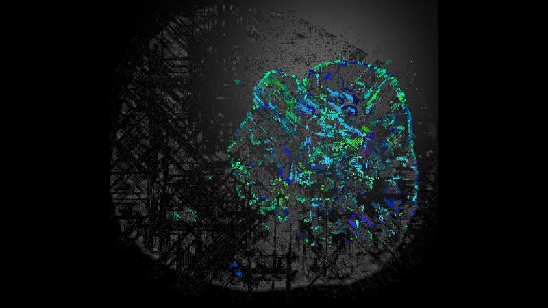 Neuron_dinamic