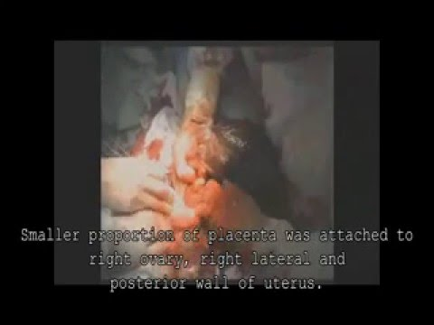 БРЮШНАЯ БЕРЕМЕННОСТЬ (ABDOMINAL PREGNANCY)