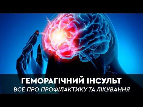 Геморагічний інсульт хвороба молодих та активних HEALTH
