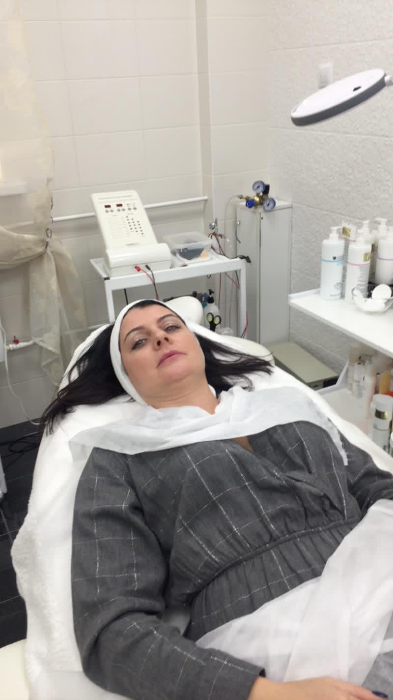 Миндальный пилинг, как подготовка к PRX-T терапии (уникальной методики омоложения)  | ЭСТЕТИЧЕСКАЯ КОСМЕТОЛОГИЯ