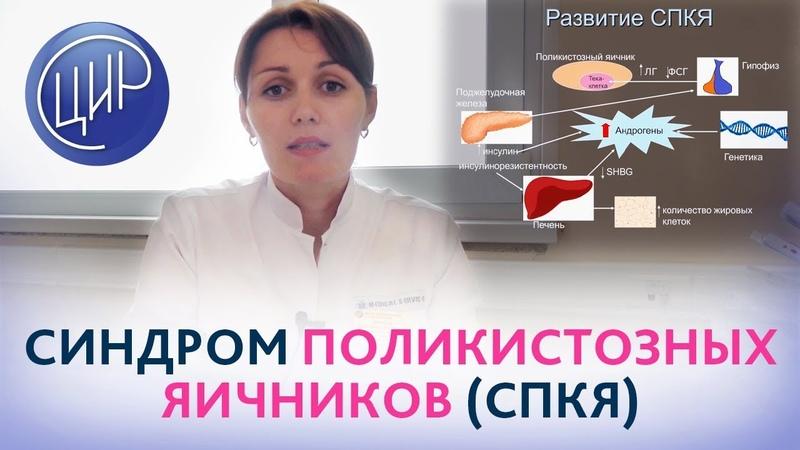 Синдром поликистозных яичников (СПКЯ). Рассказывает врач акушер-гинеколог ЦИР Дюльгер В.П.
