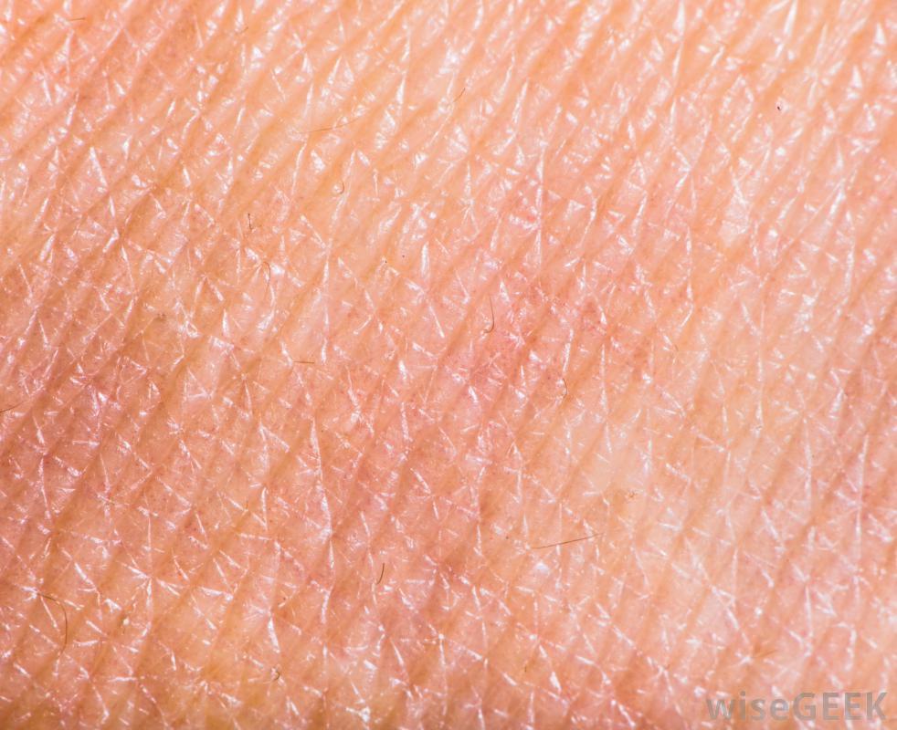 Чесотка вызывается микроскопическим клещом sacoptes scabiei, который зарывается под кожу и откладывает яйца.