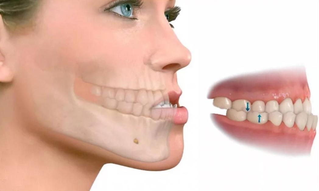 Ортодонтическое лечение - это исправление аномалий прикуса и неправильного положения...