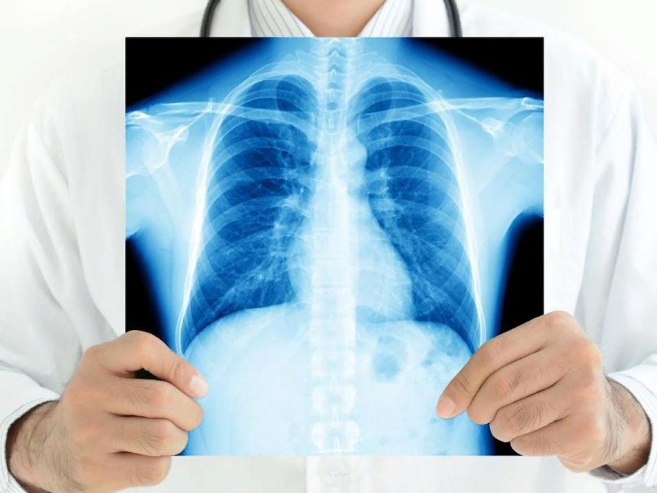 Ситуация по туберкулезу