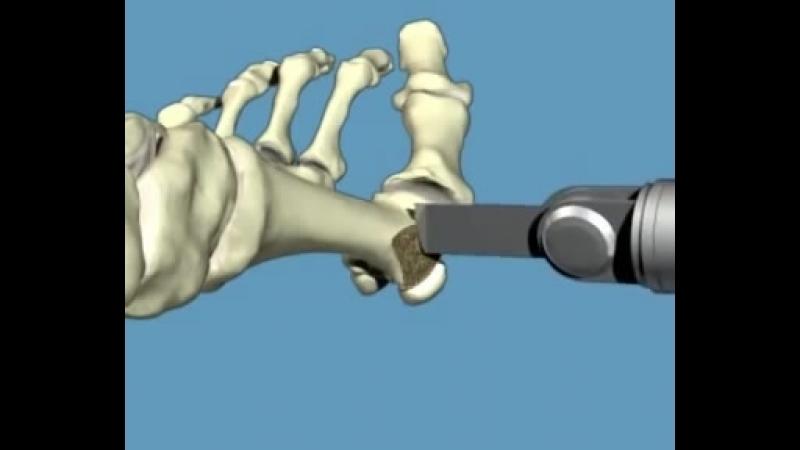 видео скарф остеотомии для коррекции деформации переднего отдела стопы